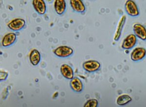 Toxic Mold Spores Hero Mold Company High Point NC