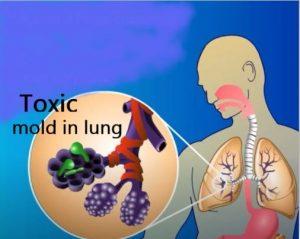Bronchial Toxic Mold Hero Mold Company Durham NC